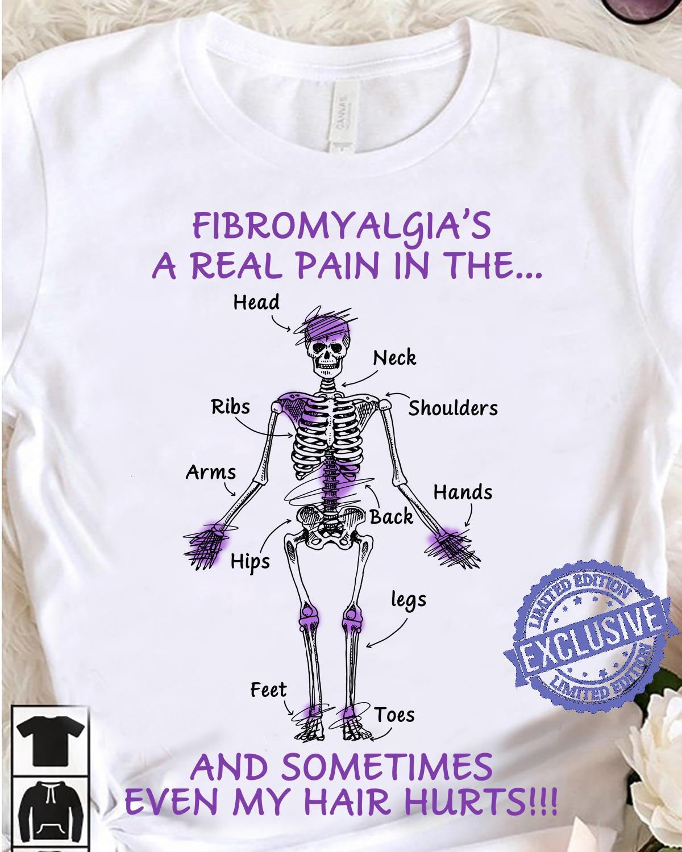 Fibromyalgia's